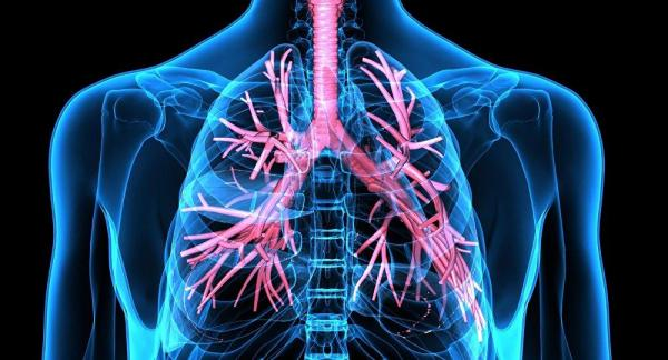 علائم غیر منتظره سرطان ریه