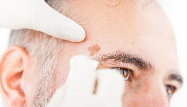 مراقبت های بعد از برداشتن خال به روش های جراحی، لیزر، سوزاندن و RF